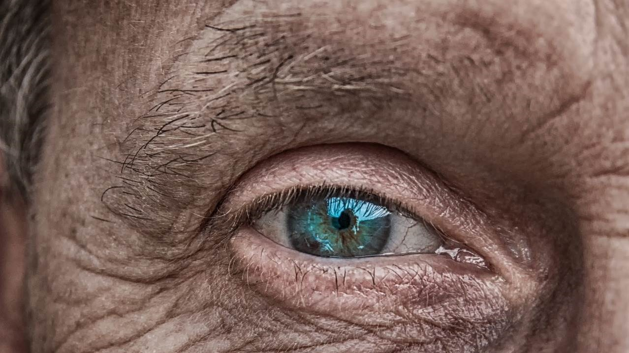 A folyadékhiány egyik tünete a ráncos, megereszkedett bőr